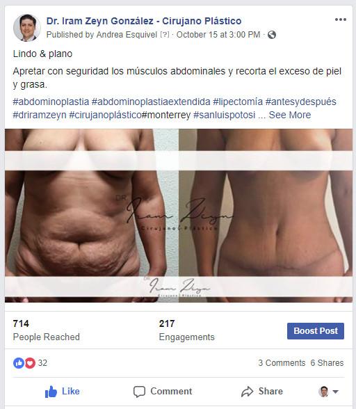 Fotografía de resultados antes y después en Facebook