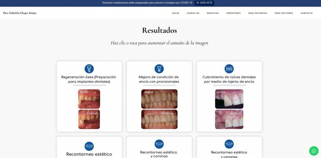 Resultados antes y después de la Dra. Gabriela Chapa